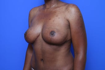 Breast Reduction after 621912