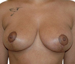 Breast Reduction / Breast Lift after 550299