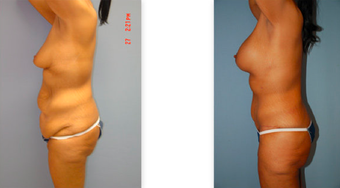 Tummy tuck, breast lift and implants, liposuction before 307051