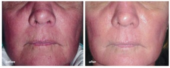 VBeam for rosacea before 44907