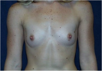 Breast Augmentation before 178943