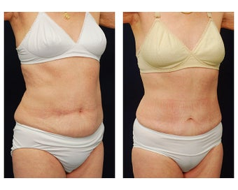 Abdominoplasty - Tummy Tuck after 396167