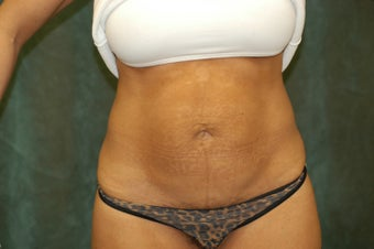 Women's Tummy Tuck before 558717