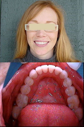 Invisalign after 109486