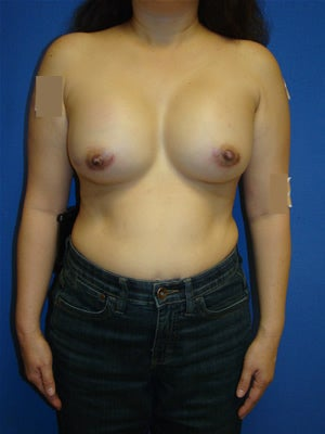 Breast Augmentation Surgery - Nipple Reduction after 161343