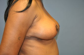 Breast Lift 515274