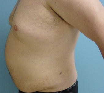 Male liposuction/liposculpture 314976