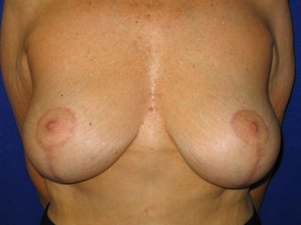 Breast Lift after 621982