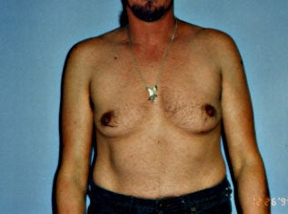 Male Breast Reduction before 264606