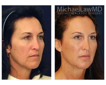 Cheek Augmentation after 415257