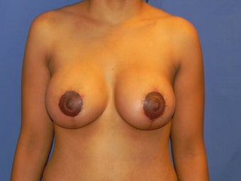 Revision Breast Augmentation and Mastopexy