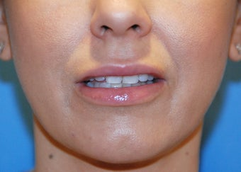 Lip Augmentation after 199328