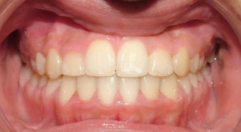 Teen Orthodontic Treatment (case #3MM) after 224584