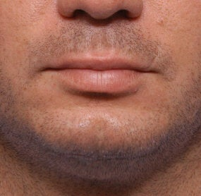 Chin Augmentation before 521701