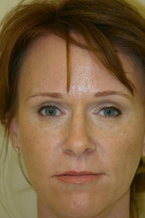 Brow Lift with Upper and Lower Blepharoplasty after 551156