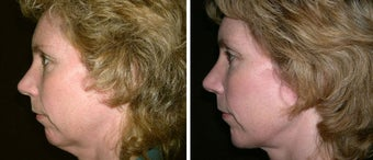 44 year old female, chin implant before 630611