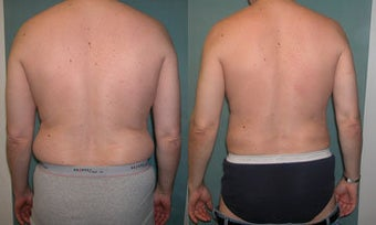 Smart Lipo of Male Abdomen/Flanks before 331972