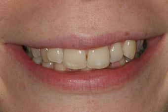 Smile Makeover with Invisalign before 94816