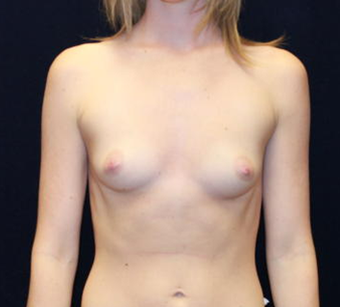 Breast Augmentation 477418