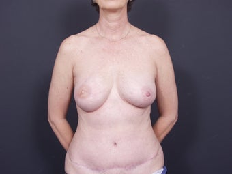 50 Year Old for Breast Reconstruction after 643249