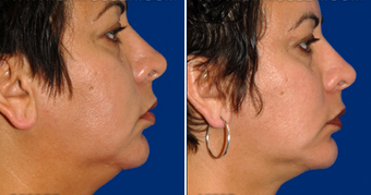 Chin Implant after 495867