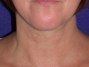 Necklift after 208441