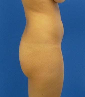 Buttock Augmentation 626014