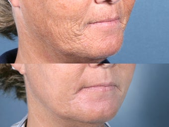 Laser Resurfacing for mouth wrinkles before 104656