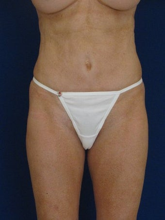 vaser Hi Def Liposuction of chest, abdomen, back and flanks before 422723
