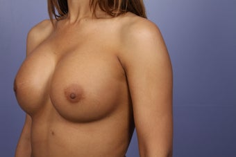 Breast Augmentation after 338718