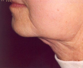 Lipodissolve and CoolSculpting after 429756