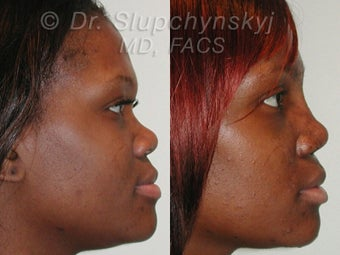 African American Rhinoplasty Revision before 613847