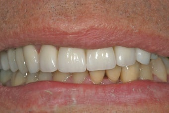 Dental implants, bone graft, all porcelain crowns and veneers after 503162