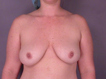 Breast Implants before 307917