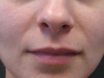 Sculptra injections after 272063