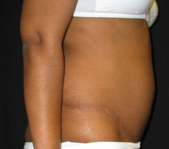 Abdominoplasty 458934