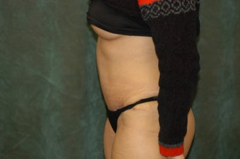 Women's Tummy Tuck 558717