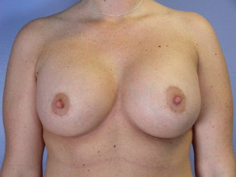 Breast Lift / Breast Augmentation    after 290987