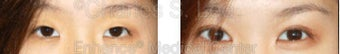 Blepharoplasty before 427710