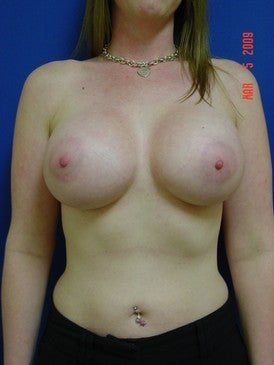 Breast Augmentation after 318730