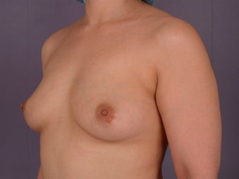 Breast Implants  before 305416