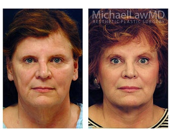 Facial Rejuvenation before 395143