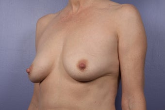 Breast Augmentation before 466416