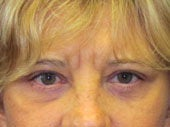 Brow Lift after 541479