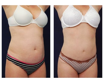 Liposuction after 397002