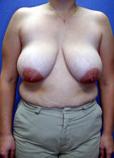 Breast Reduction Surgery before 120104