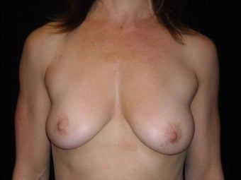 Augmentation mastopexy before 516299
