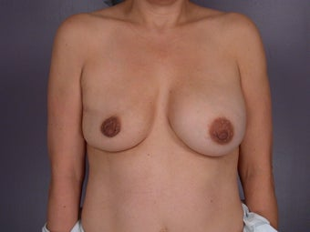 Breast Implants before 302547