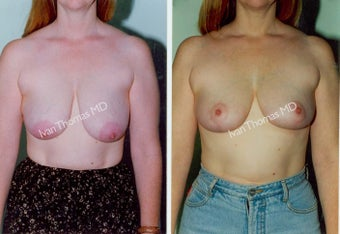 Breast Lift before 243695