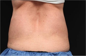 NonInvasive Fat Removal with CoolSculpting -Invented by Dr. Dieter Manstein after 442121